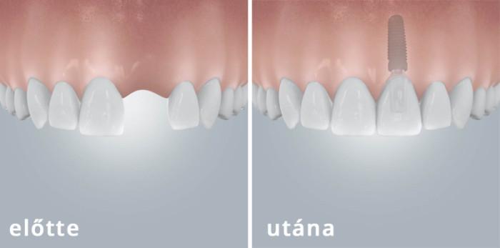 Implantáció1
