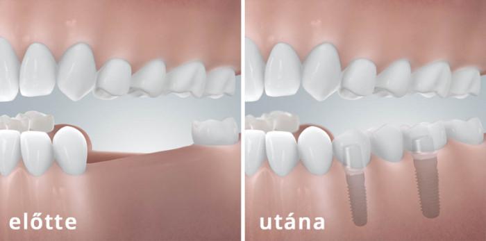 Implantáció2