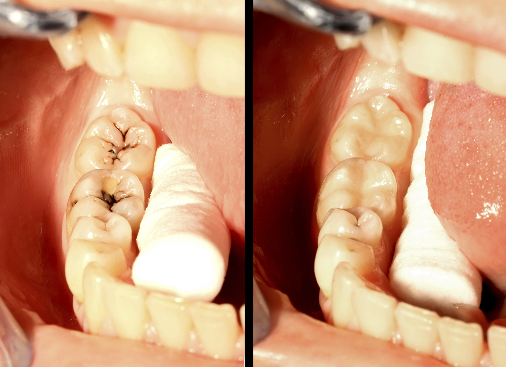 Molar teeth restoration with composite obturation, before and after