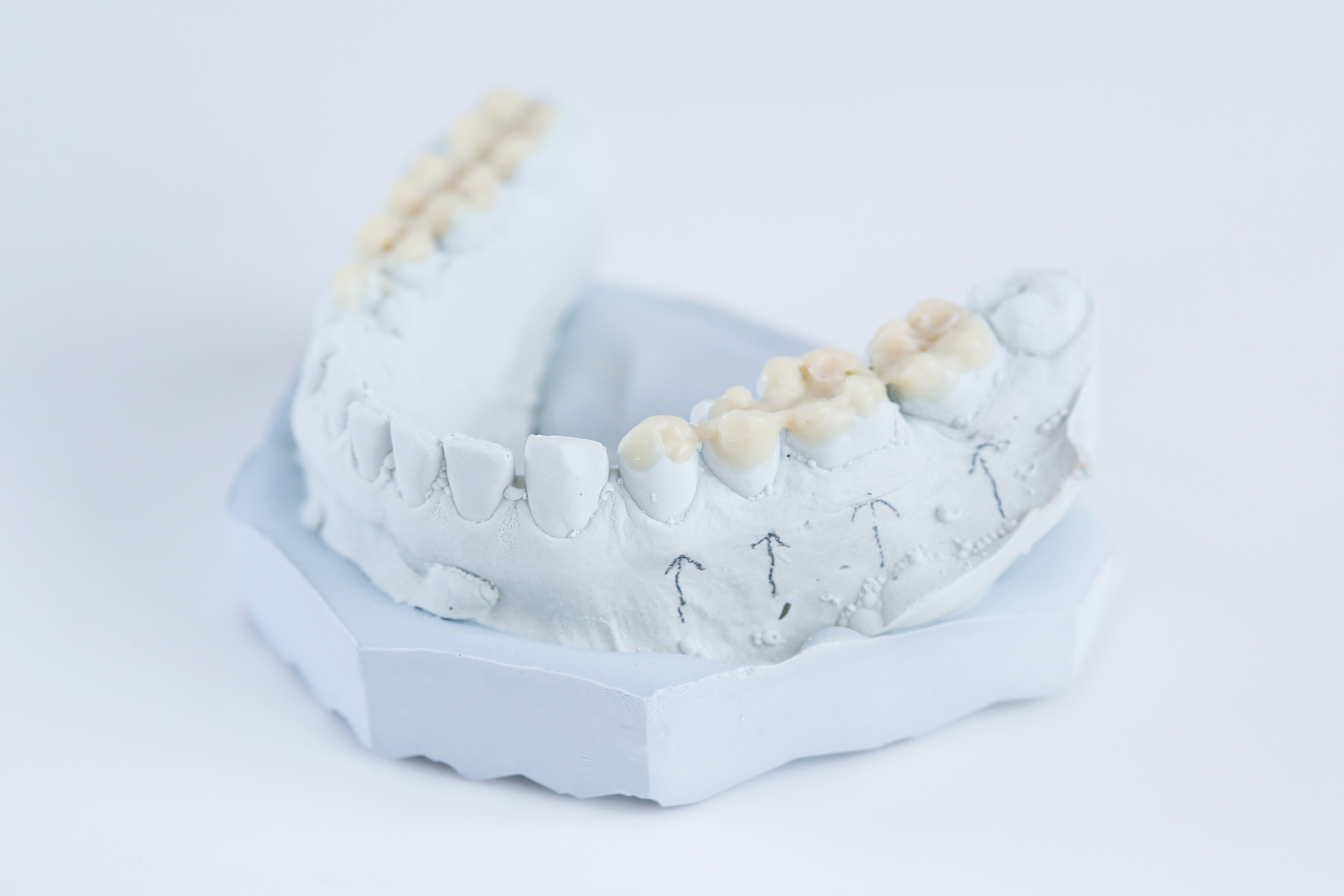 Dental plaster mold with ceramic crowns