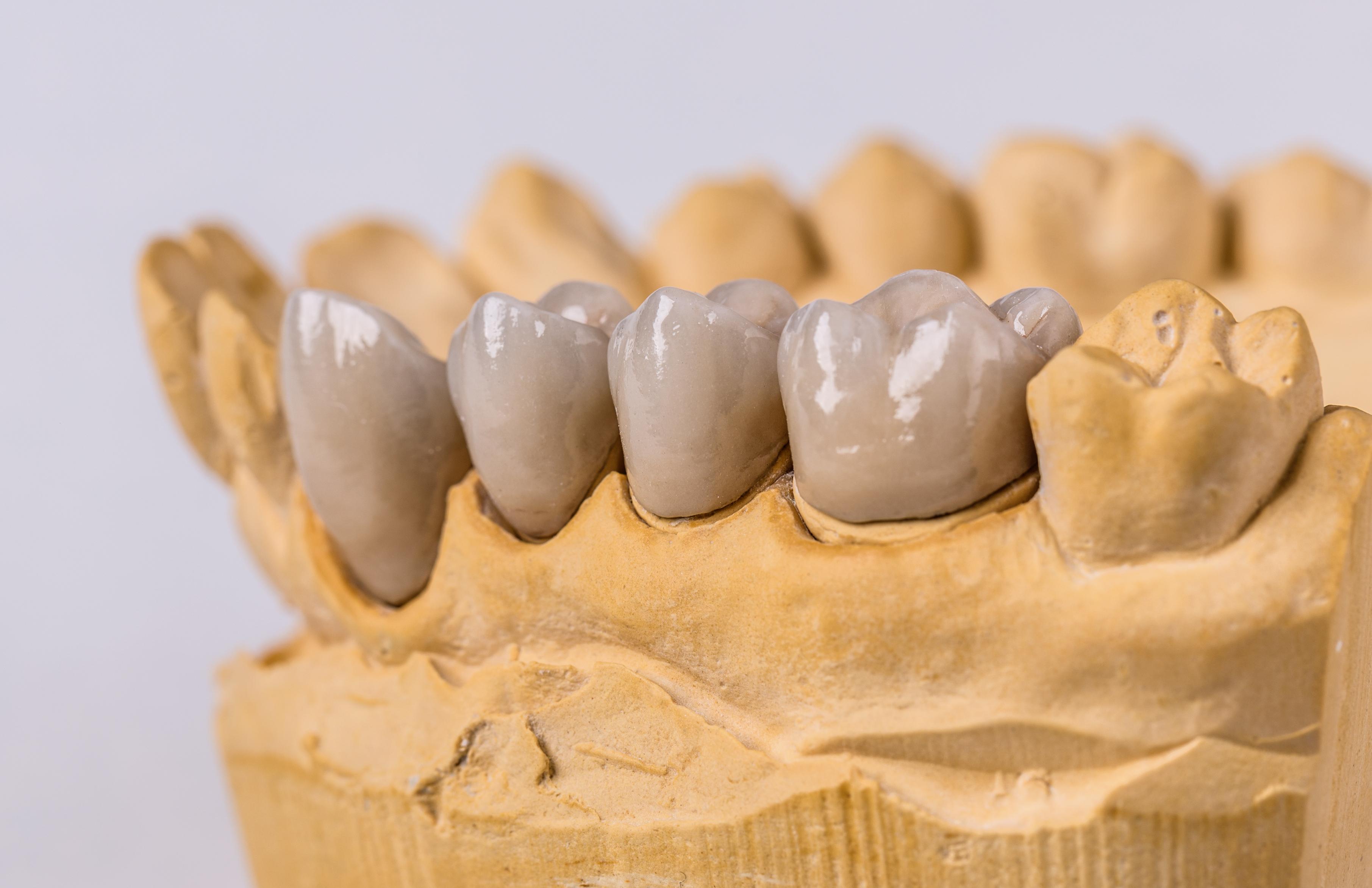 Ceramic dental implants on gypsum layout close-up